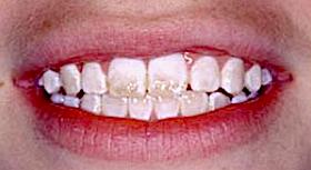 fluorosis amd lips m