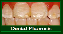 Dental Fluorosis ff