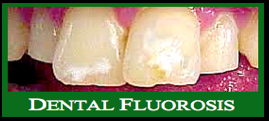 Dental fluorosis f